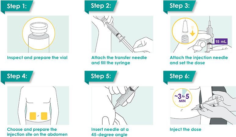6-step summary of subcutaneous administration for DARZALEX FASPRO®